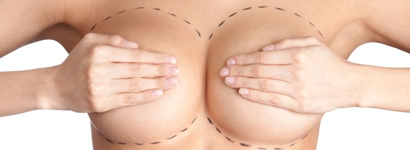 cpl-aumento-mamario